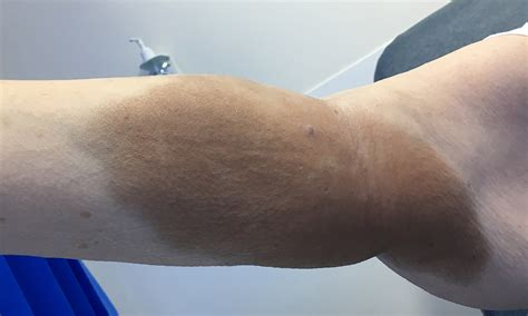Iron stain following an intravenous iron infusion   The